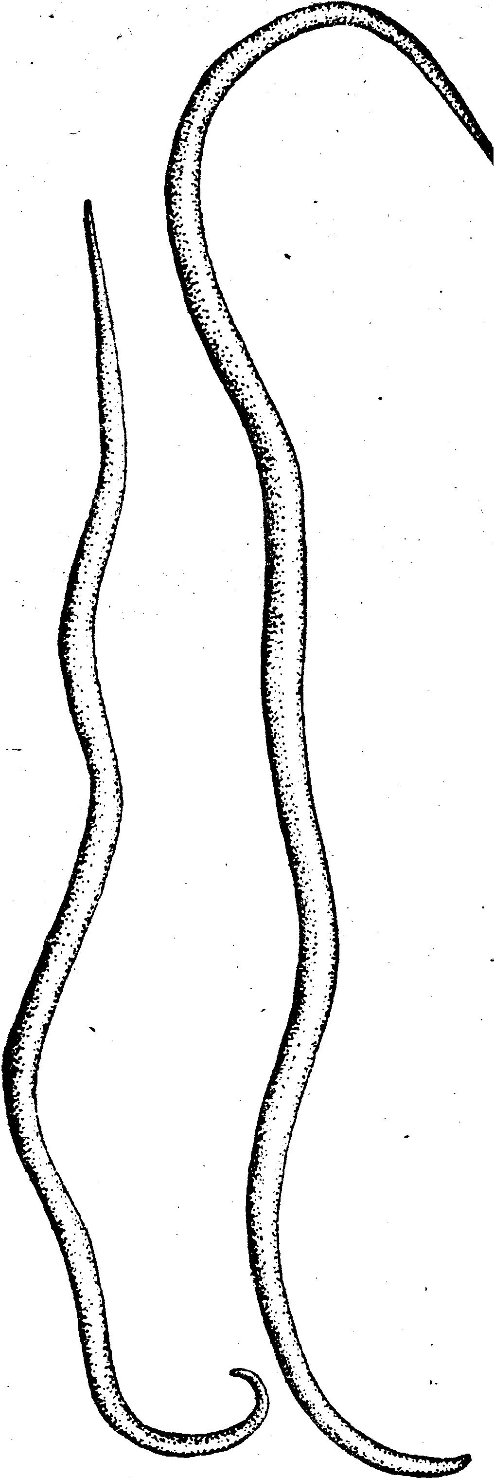 черви в глазах человека лечение