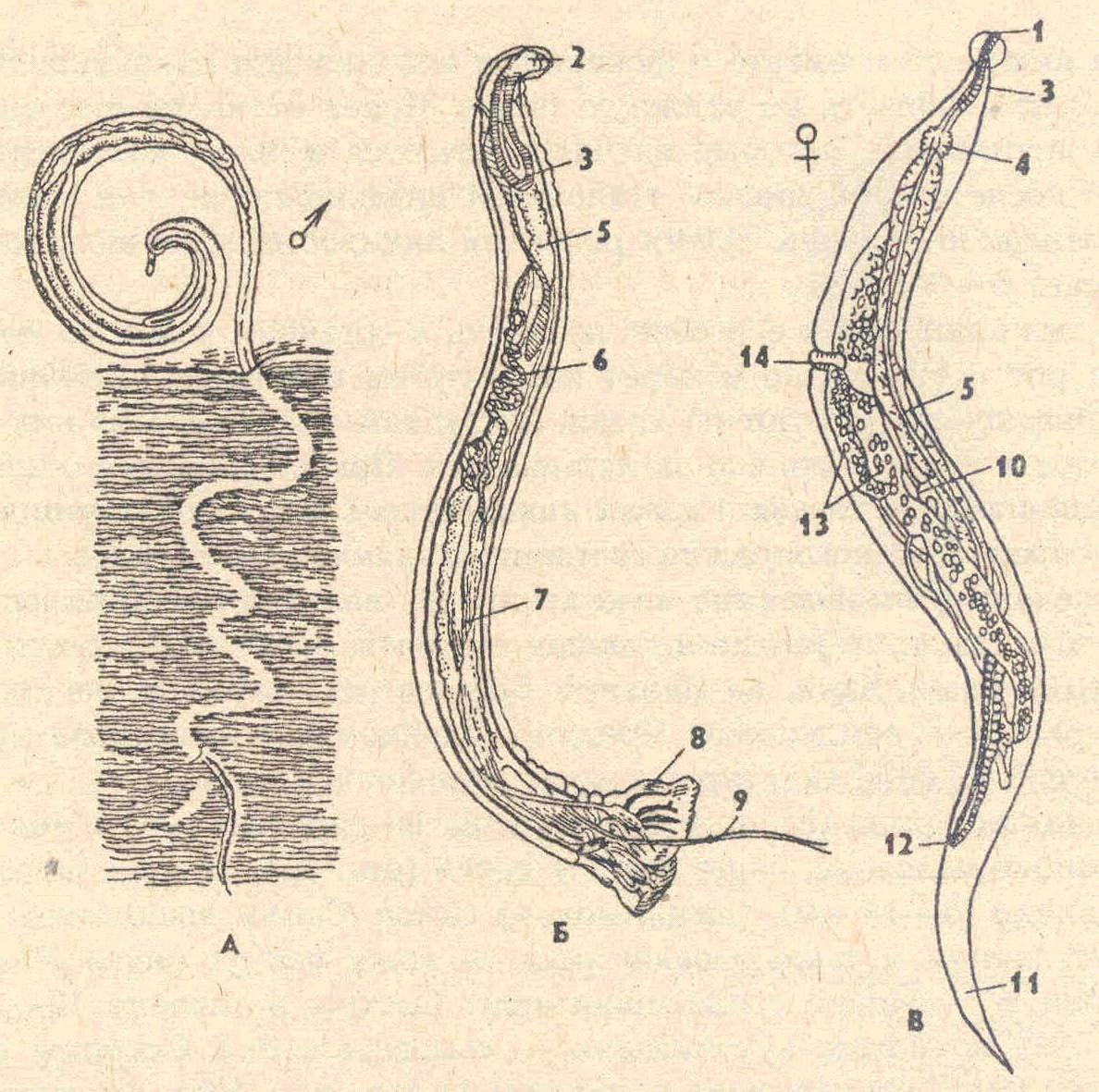 паразиты в брюшной полости человека